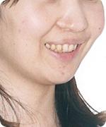 口唇口蓋 治療後