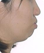 口唇口蓋 治療前